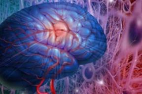 Qué-es-el-ictus-cerebral