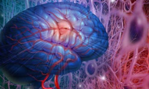 ¿Cómo prevenir un ataque cerebro vascular?