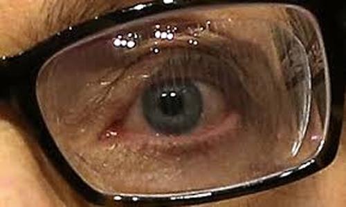 Cataratas: Una enfermedad que puede causar ceguera