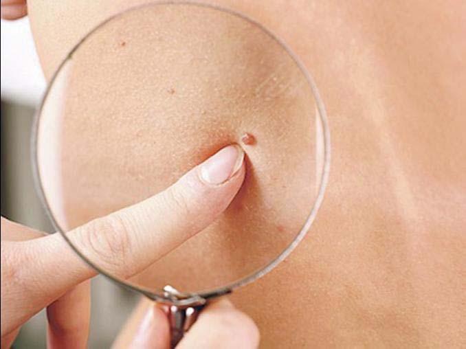 Verrugas… ¿a que se deben y como tratarlas en la niñez?