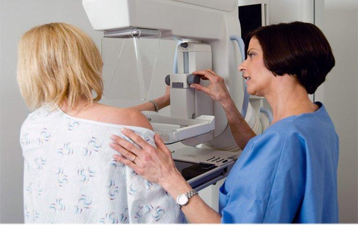 Después de los 50 años, se puede disminuir el riesgo de cáncer de mama adelgazando